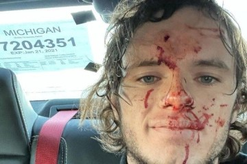 """whistlin diesel - """"NÃO SEI COMO SOBREVIVI"""": Youtuber vai testar arma, bala ricocheteia e o acerta na cabeça"""