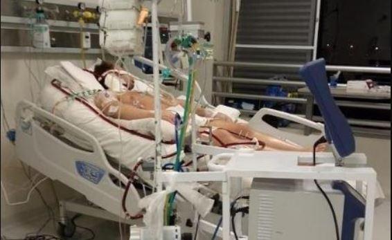 fisio - Com covid-19, fisiculturista usou ECMO para sobreviver; entenda a terapia