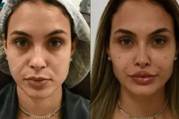 sarah andrade - Ex-BBB Sarah Andrade faz harmonização facial com profissional que cuida de Gretchen; veja antes e depois