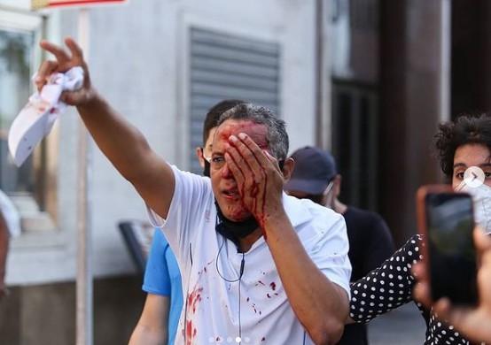Daniel Campelo - VIOLÊNCIA! Tiro de bala de borracha da PM em protesto deixa homem cego no Recife, vítima estava trabalhando