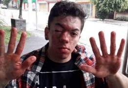 """Passageiro ganha na Justiça após agressão de motorista, """"apanhei por beijar um rapaz"""""""