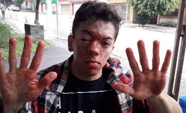 """agredido - Passageiro ganha na Justiça após agressão de motorista, """"apanhei por beijar um rapaz"""""""