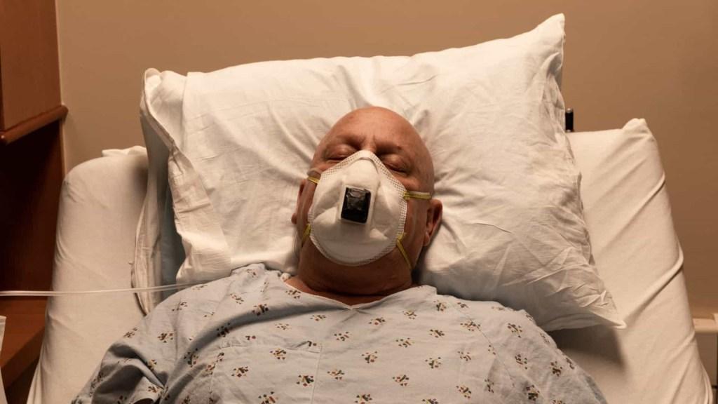 naom 6098d0d31536a 1024x576 - VULNERABILIDADE: Homens carecas têm o dobro do risco de sofrerem de Covid severa