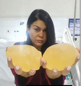 MYRA SILICONE - 'A SENSAÇÃO É LIBERDADE': Myra Maia comemora sucesso de retirada de próteses mamárias; VEJA VÍDEO