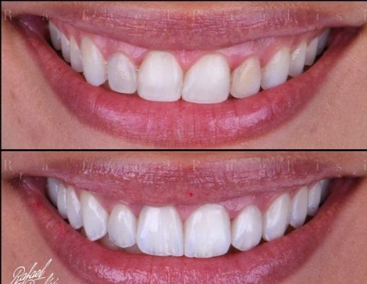 lente dentes - Juliette coloca lentes de contato nos dentes e segue nova tendência mais natural; VEJA RESULTADO