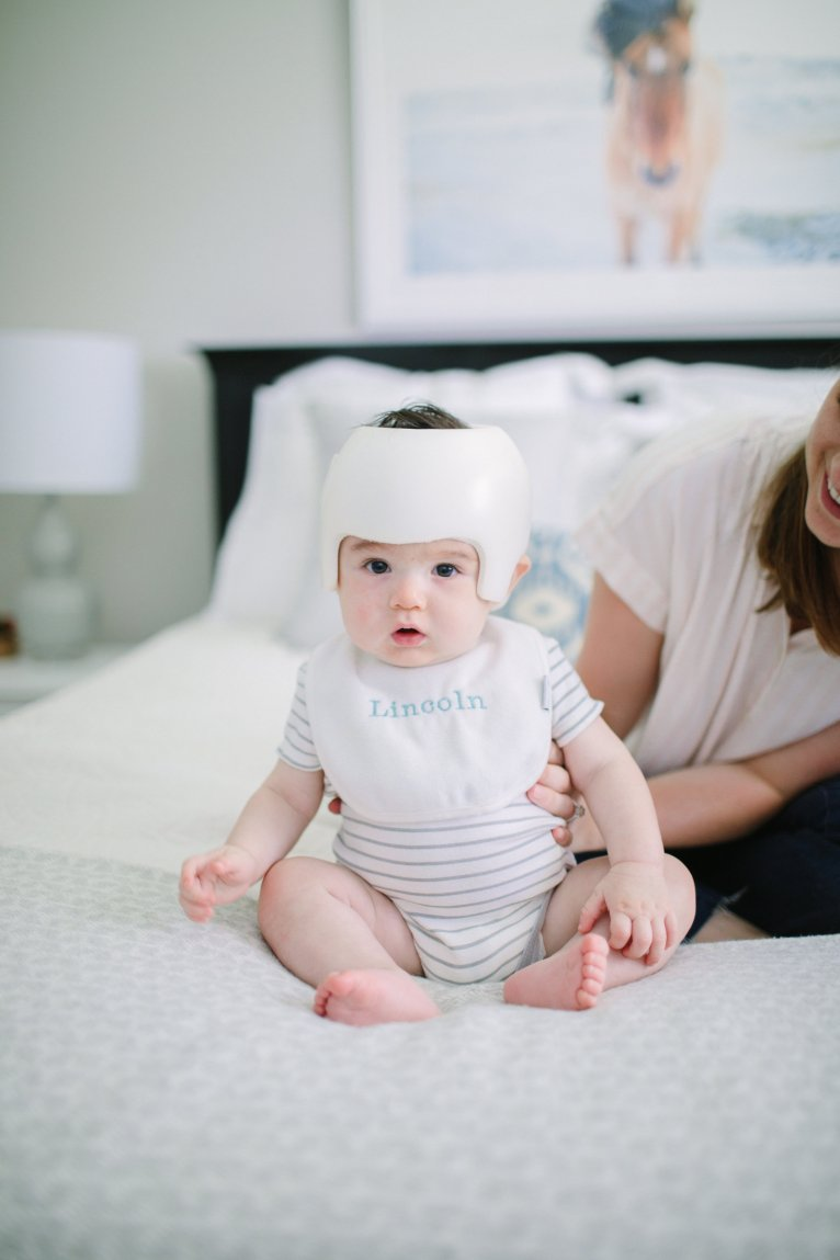Our Process Through Getting a Baby Helmet for Lincoln by Lifestyle and Mom Blogger Maggie Kern of Polished Closets.