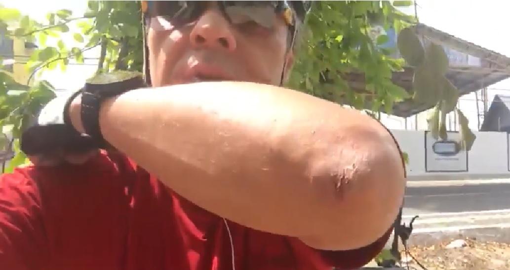 """VÍDEO: Descontraído, Cássio relata pequeno acidente: """"Levei um estabaco"""""""