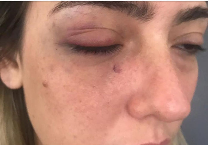 Advogada Myriam Gadelha revela detalhes da agressão que sofreu do prefeito Fábio Tyrone