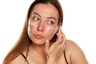 Krem do cery problematycznej - nawilżanie i pielęgnacja skóry z niedoskonałościami i trądzikiem