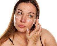 Krem do cery problematycznej – nawilżanie i pielęgnacja skóry z niedoskonałościami i trądzikiem