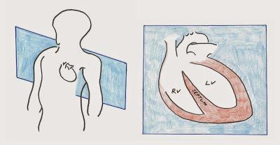 sagittal-heart-page-001