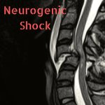 EMJ Blog – Nuances of Neurogenic Shock