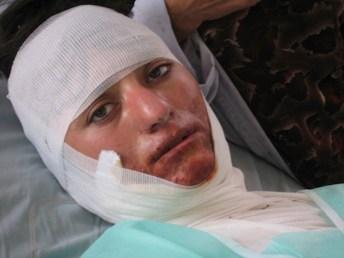 Tra le donne afghane è ancora molto diffusa la pratica dell'auto immolazione. Le donne si danno fuoco come forma estrema di protesta. quasi sempre nei confronti del proprio marito o dei propri familiari maschi.