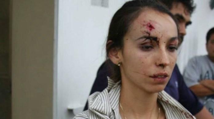 """La giornalista del quotidiano """"El Heraldo de Silao"""" Karla Janeth Silva subito dopo essere stata ferita."""