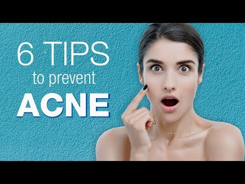 Acne Prevention | 6 Tips to avoid pimples Poppinzits.com