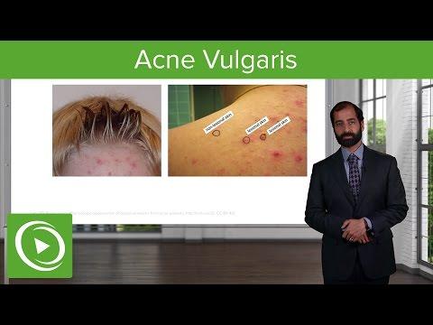 Inflammatory Skin Diseases: Acne Vulgaris – Pathology | Lecturio