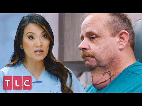 Patient Has a Huge Lump On His Neck | Dr. Pimple Popper