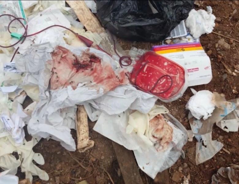 Empresa coletora de lixo hospitalar no Acre é denunciada ao Ministério Público por suposta irregularidade ambiental