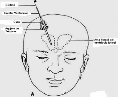 manejo_anestesico_cirugia_aneurisma/craneostato