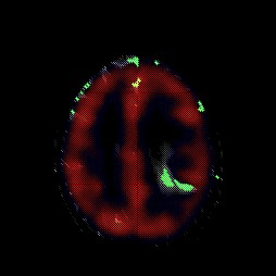 astrocitoma_7