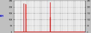 astrocitoma_Componente_G1