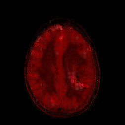 astrocitoma_canalR1b