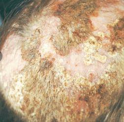 Tinea capitis favosa - http://www.edoctoronline.com/dermatology-atlas.asp?c=4&id=24884