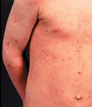 dermatite atopica - figura 03
