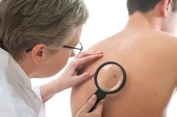 Campanha nacional de combate ao câncer de pele chega à Bahia