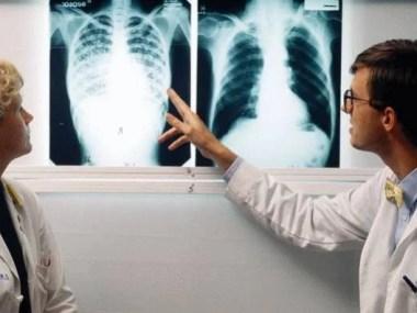Saúde lança Plano Nacional pelo fim da tuberculose