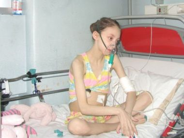 Morre menina que pediu eutanásia