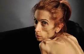 Atriz anoréxica recebe doações para se tratar