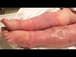 A sepse nesta terça no Saúde no Ar