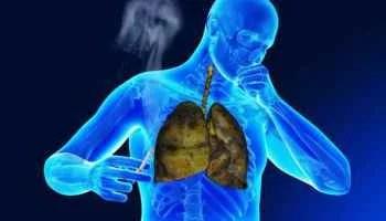Salvador combate a tuberculose