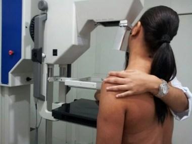 Idade da menopausa está ligada a caso de câncer de mama