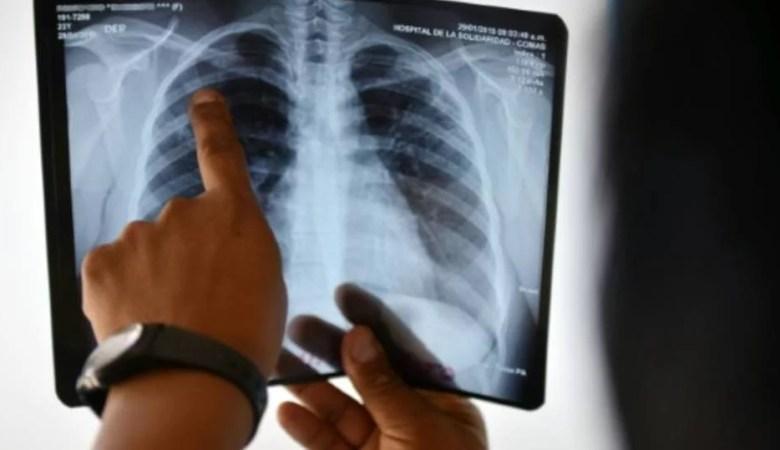 Cai mortalidade por câncer de pulmão
