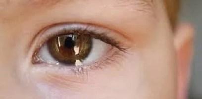 Glaucoma:doença degenerativa que poder ser controlada
