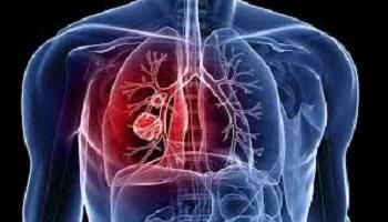 Registro de tuberculose que resiste a remédio triplica