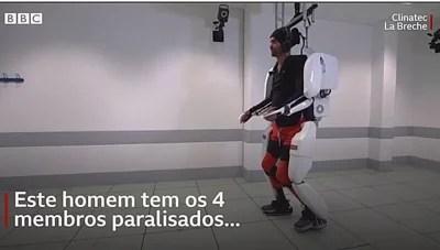 Tetraplégico com implante no cérebro movimenta pernas e braços