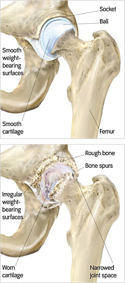 Causes of Arthritis  Portland Hip Resurfacing  The Next Generation in Hip Replacement