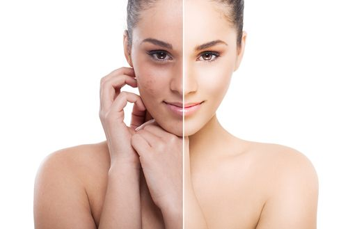 How to Brighten Your Skin Naturally