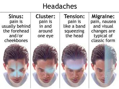 Types of headaches. Image from http://www.dermaface.ie/migrainetreatment.html