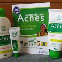Product Review: The Rohto Mentholatum Acnes Treatment