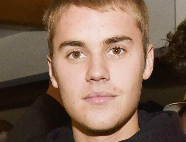 Justin Bieber déclare l'acné tendance !