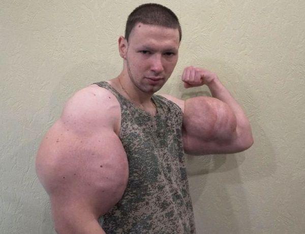 Le Popeye Russe a besoin d'aide : Il risque de perdre ses bras