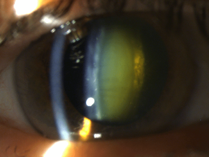 How Do Cataracts Form? - Potthoff Eye Care and Surgery