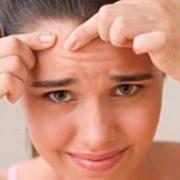 Kako liječiti akne (pupičavost kože) prirodan način