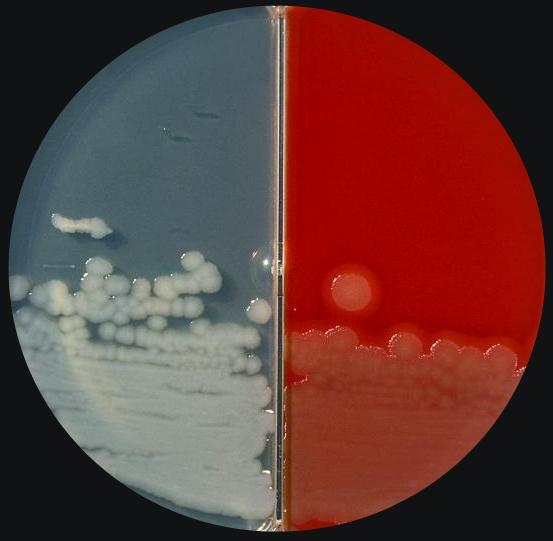 Gram Pos Rods Jpg1 43 Mb