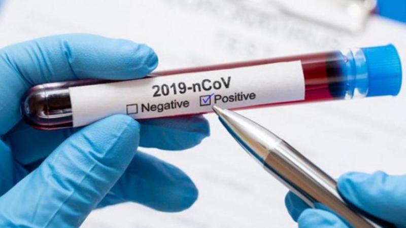 Covid-19: Novos casos positivos aumentaram ao ritmo de 1,4 por dia em Ovar