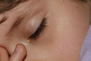 Praktijk voor Houding en Beweging, slaapproblemen